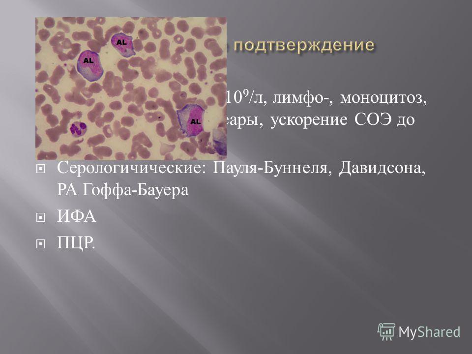 Лейкоцитоз до 15-30-10 9 / л, лимфо -, моноцитоз, атипичные мононуклеары, ускорение СОЭ до 20-30 мм / ч. Серологичические : Пауля - Буннеля, Давидсона, РА Гоффа - Бауера ИФА ПЦР.
