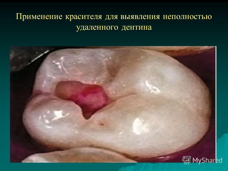Применение красителя для выявления неполностью удаленного дентина