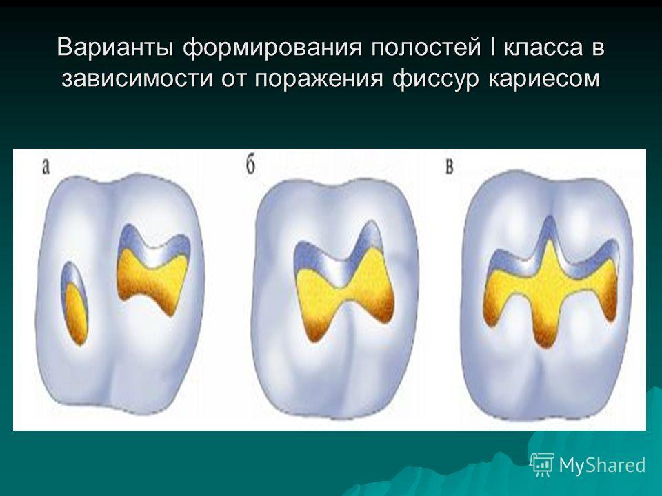 Варианты формирования полостей I класса в зависимости от поражения фиссур кариесом