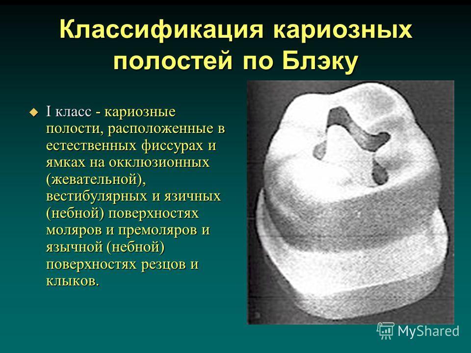 Классификация кариозных полостей по Блэку I класс - кариозные полости, расположенные в естественных фиссурах и ямках на окклюзионных (жевательной), вестибулярных и язичных (небной) поверхностях моляров и премоляров и язычной (небной) поверхностях рез