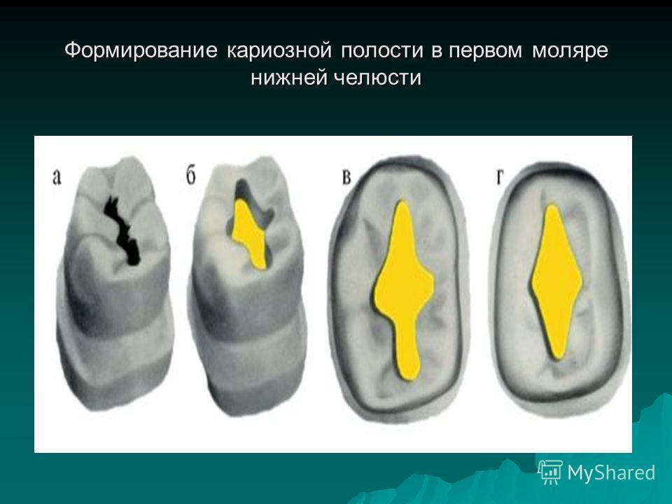 Формирование кариозной полости в первом моляре нижней челюсти