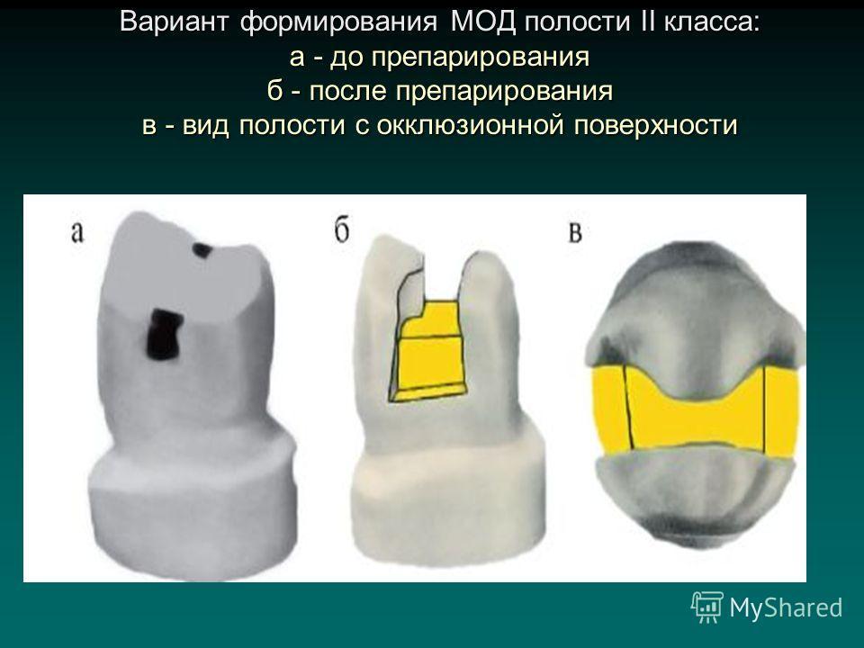 Вариант формирования МОД полости II класса: а - до препарирования б - после препарирования в - вид полости с окклюзионной поверхности