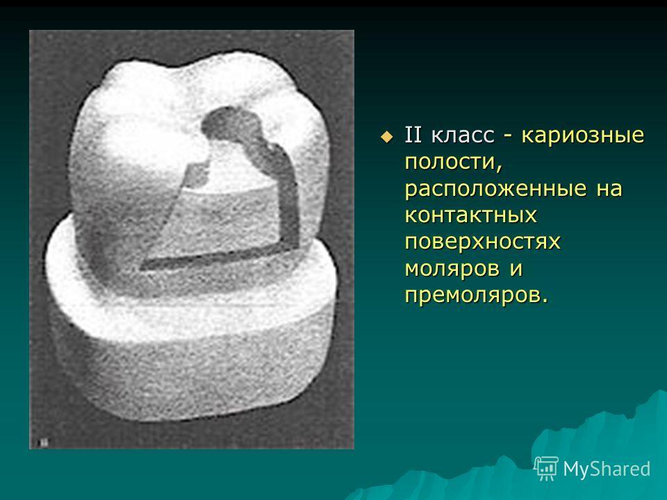 II класс - кариозные полости, расположенные на контактных поверхностях моляров и премоляров. II класс - кариозные полости, расположенные на контактных поверхностях моляров и премоляров.
