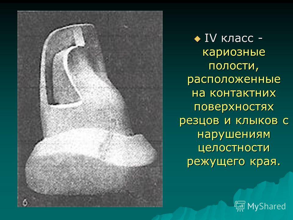 IV класс - кариозные полости, расположенные на контактних поверхностях резцов и клыков с нарушениям целостности режущего края. IV класс - кариозные полости, расположенные на контактних поверхностях резцов и клыков с нарушениям целостности режущего кр