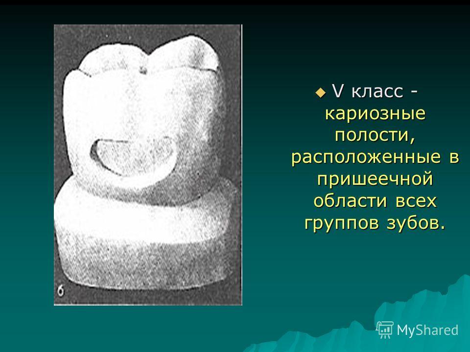 V класс - кариозные полости, расположенные в пришеечной области всех группов зубов. V класс - кариозные полости, расположенные в пришеечной области всех группов зубов.