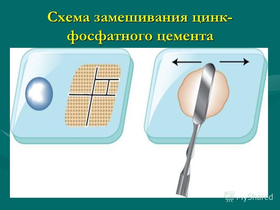 Схема замешивания цинк- фосфатного цемента