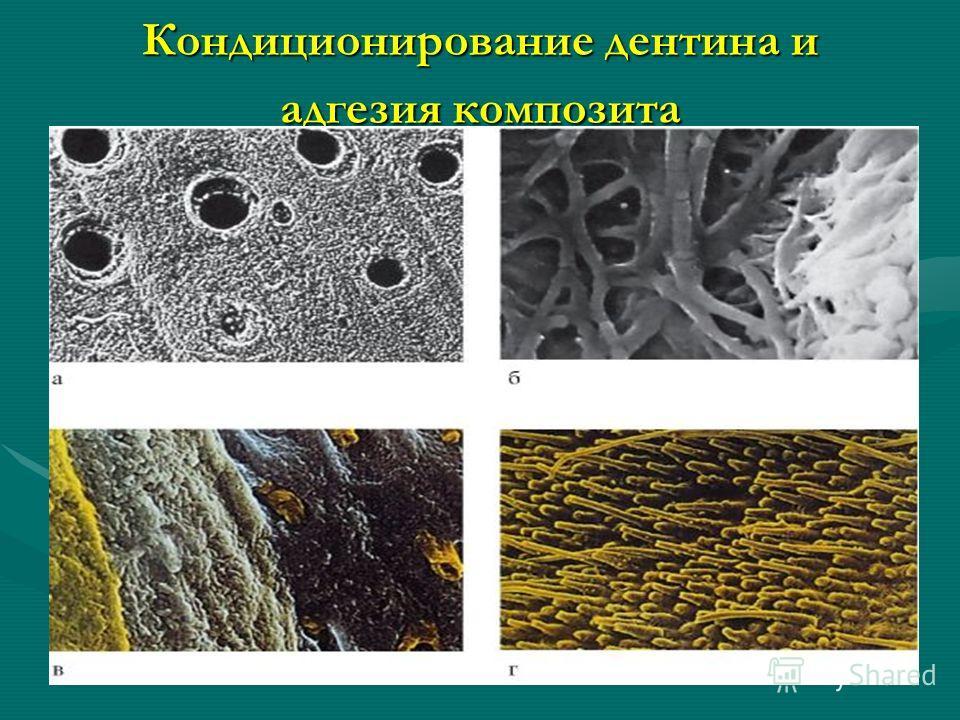 Кондиционирование дентина и адгезия композита