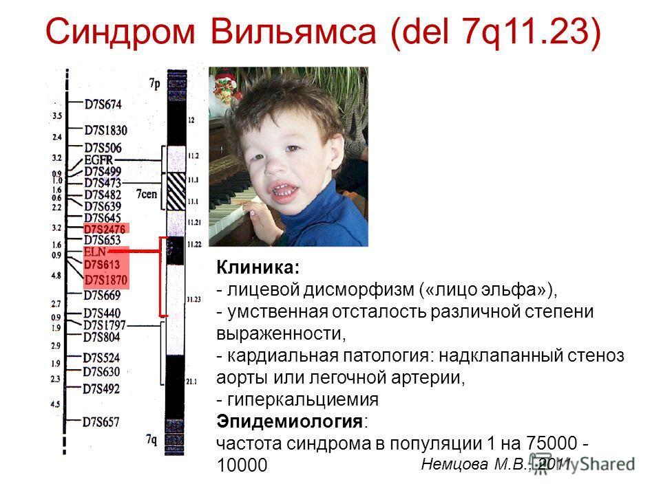 Синдром Вильямса (del 7q11.23) Клиника: - лицевой дисморфизм («лицо эльфа»), - умственная отсталость различной степени выраженности, - кардиальная патология: надклапанный стеноз аорты или легочной артерии, - гиперкальциемия Эпидемиология: частота син