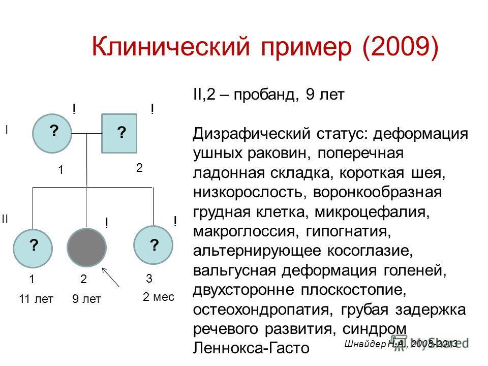 Клинический пример (2009) II,2 – пробанд, 9 лет Дизрафический статус: деформация ушных раковин, поперечная ладонная складка, короткая шея, низкорослость, воронкообразная грудная клетка, микроцефалия, макроглоссия, гипогнатия, альтернирующее косоглази