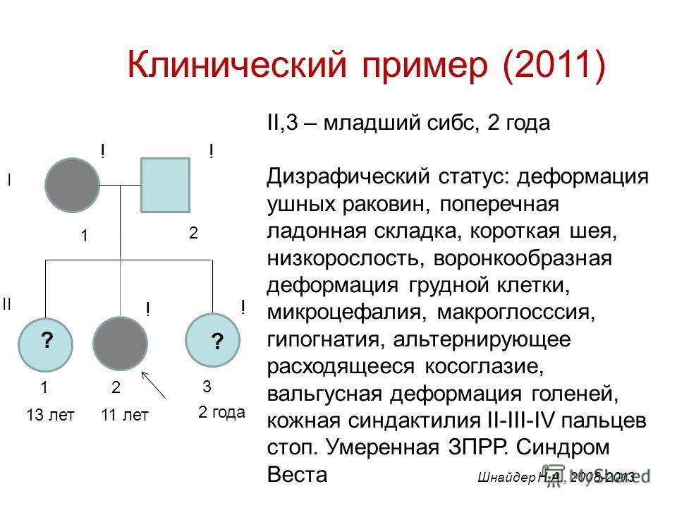 Клинический пример (2011) II,3 – младший сибс, 2 года Дизрафический статус: деформация ушных раковин, поперечная ладонная складка, короткая шея, низкорослость, воронкообразная деформация грудной клетки, микроцефалия, макроглосссия, гипогнатия, альтер