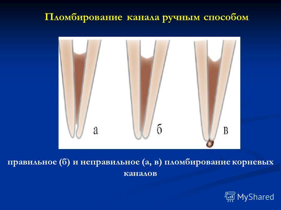 правильное (б) и неправильное (а, в) пломбирование корневых каналов