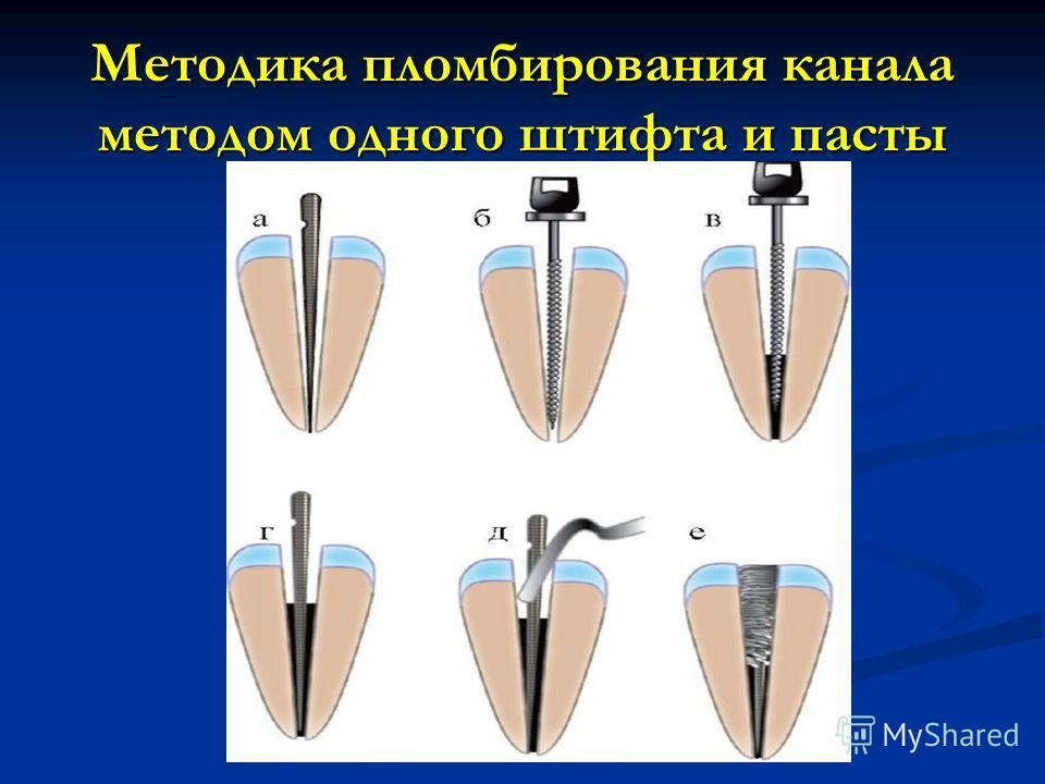 Методика пломбирования канала методом одного штифта и пасты