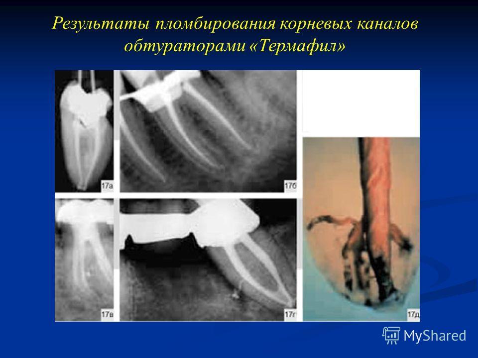 Результаты пломбирования корневых каналов обтураторами «Термафил»