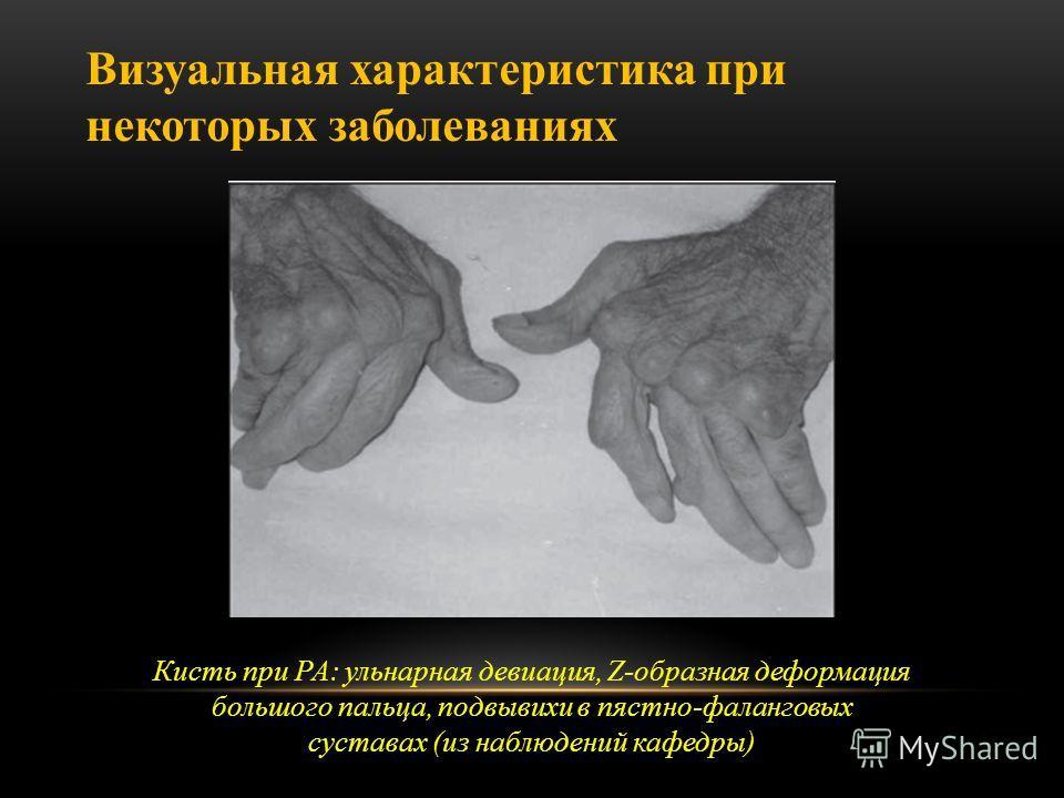 Кисть при РА: ульнарная девиация, Z-образная деформация большого пальца, подвывихи в пястно-фаланговых суставах (из наблюдений кафедры) Визуальная характеристика при некоторых заболеваниях