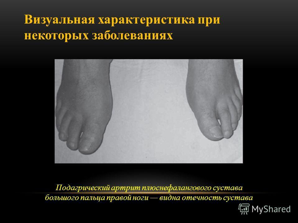 Подагрический артрит плюснефалангового сустава большого пальца правой ноги видна отечность сустава Визуальная характеристика при некоторых заболеваниях