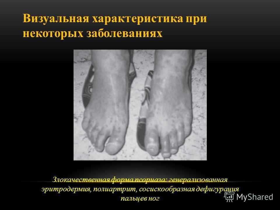 Злокачественная форма псориаза: генерализованная эритродермия, полиартрит, сосискообразная дефигурация пальцев ног Визуальная характеристика при некоторых заболеваниях