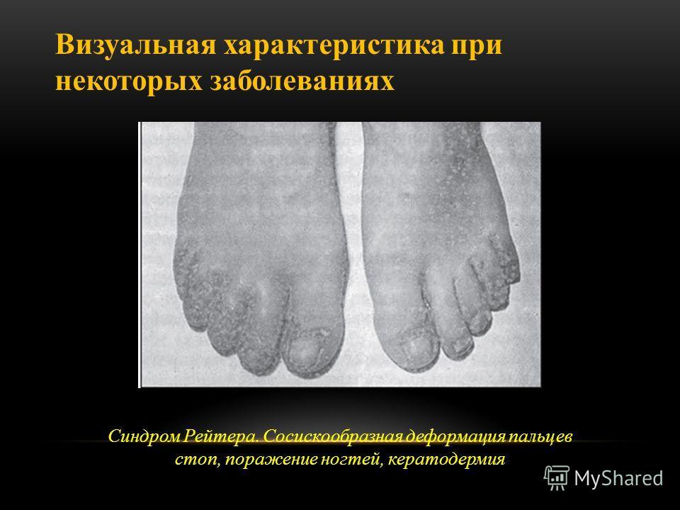 Синдром Рейтера. Сосискообразная деформация пальцев стоп, поражение ногтей, кератодермия Визуальная характеристика при некоторых заболеваниях