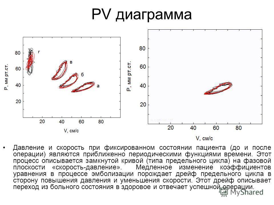 PV диаграмма Давление и скорость при фиксированном состоянии пациента (до и после операции) являются приближенно периодическими функциями времени. Этот процесс описывается замкнутой кривой (типа предельного цикла) на фазовой плоскости «скорость-давле