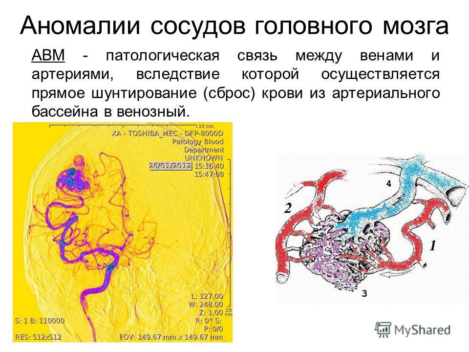 Аномалии сосудов головного мозга АВМ - патологическая связь между венами и артериями, вследствие которой осуществляется прямое шунтирование (сброс) крови из артериального бассейна в венозный.