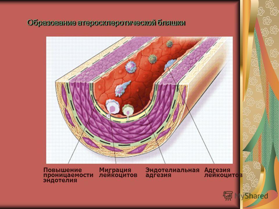 Образование атеросклеротической бляшки Адгезия лейкоцитов Эндотелиальная адгезия Миграция лейкоцитов Повышение проницаемости эндотелия