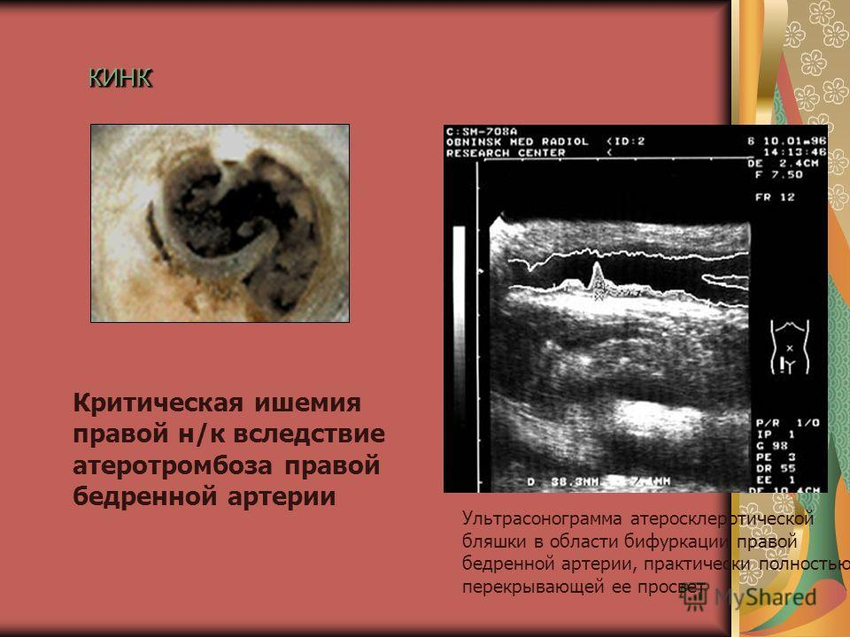 КИНККИНК Критическая ишемия правой н/к вследствие атеротромбоза правой бедренной артерии Ультрасонограмма атеросклеротической бляшки в области бифуркации правой бедренной артерии, практически полностью перекрывающей ее просвет