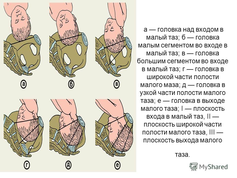 а головка над входом в малый таз; б головка малым сегментом во входе в малый таз; в головка большим сегментом во входе в малый таз; г головка в широкой части полости малого маза; д головка в узкой части полости малого таза; е головка в выходе малого