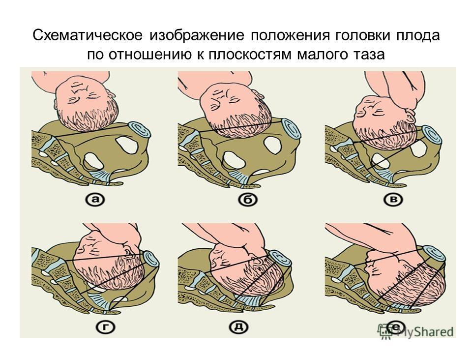 Схематическое изображение положения головки плода по отношению к плоскостям малого таза