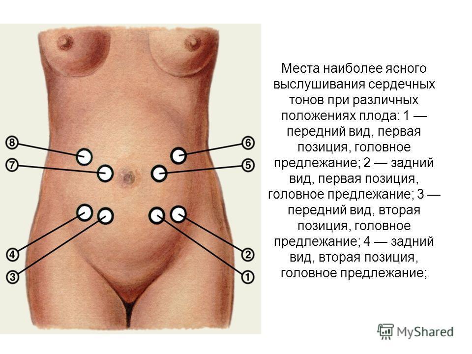 Места наиболее ясного выслушивания сердечных тонов при различных положениях плода: 1 передний вид, первая позиция, головное предлежание; 2 задний вид, первая позиция, головное предлежание; 3 передний вид, вторая позиция, головное предлежание; 4 задни