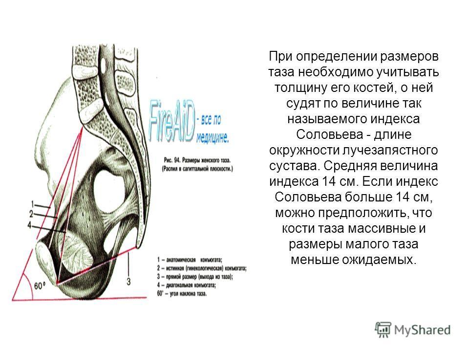 При определении размеров таза необходимо учитывать толщину его костей, о ней судят по величине так называемого индекса Соловьева - длине окружности лучезапястного сустава. Средняя величина индекса 14 см. Если индекс Соловьева больше 14 см, можно пред
