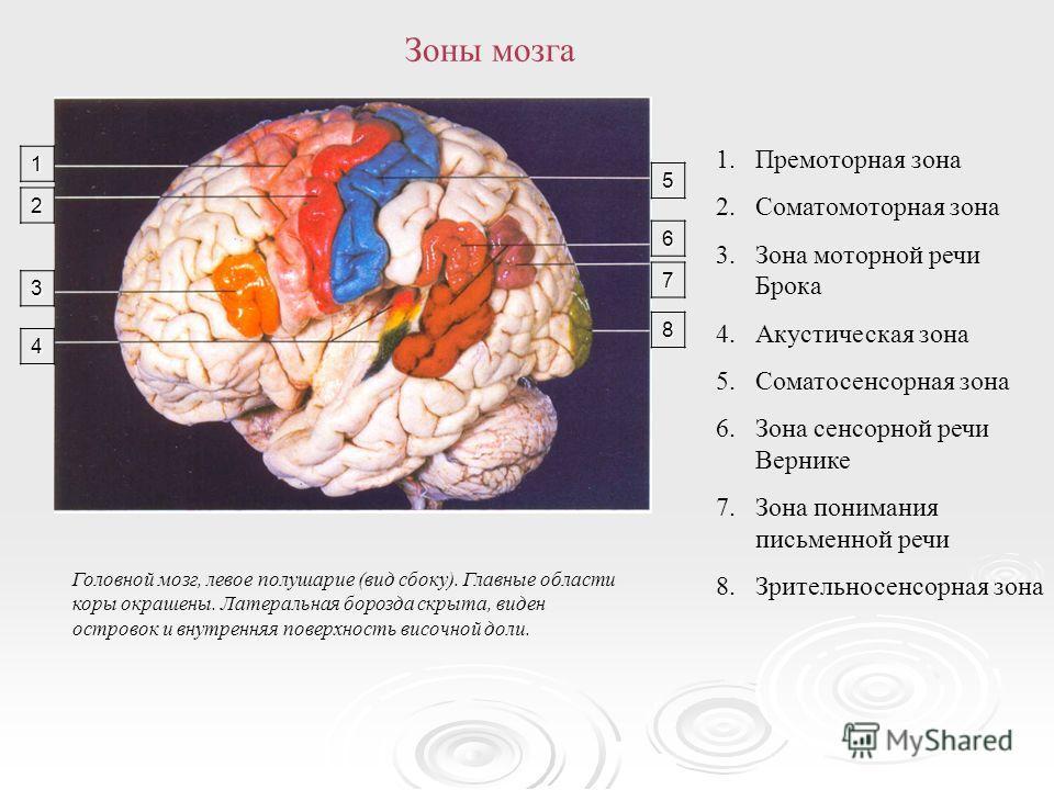 Головной мозг, левое полушарие (вид сбоку). Главные области коры окрашены. Латеральная борозда скрыта, виден островок и внутренняя поверхность височной доли. 1.Премоторная зона 2.Соматомоторная зона 3.Зона моторной речи Брока 4.Акустическая зона 5.Со