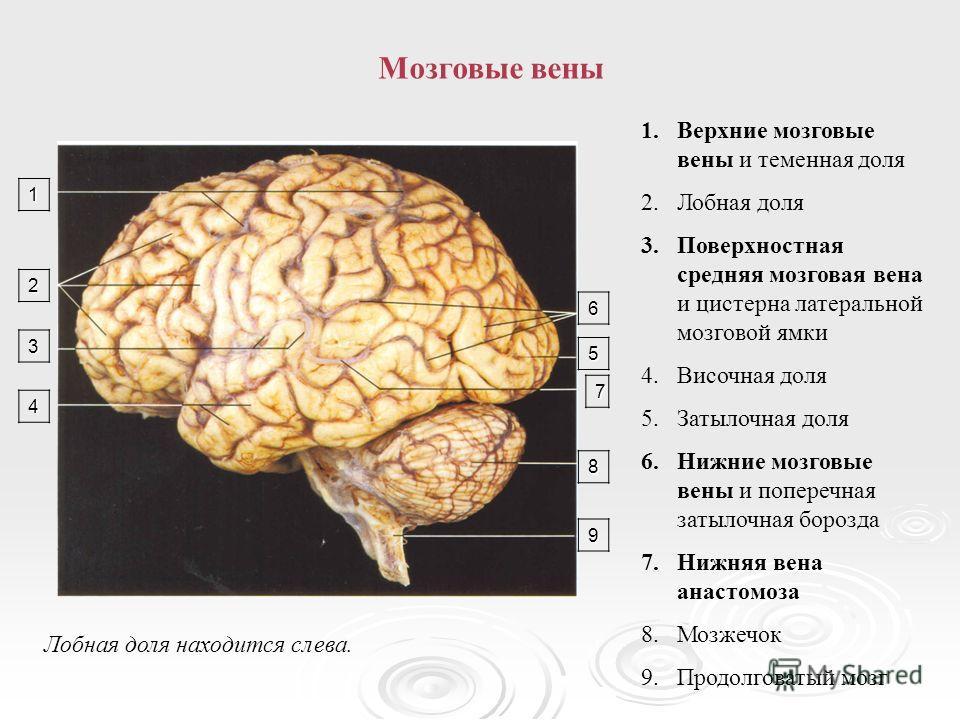 Мозговые вены1 2 3 4 6 5 7 8 9 Лобная доля находится слева. 1.Верхние мозговые вены и теменная доля 2.Лобная доля 3.Поверхностная средняя мозговая вена и цистерна латеральной мозговой ямки 4.Височная доля 5.Затылочная доля 6.Нижние мозговые вены и по