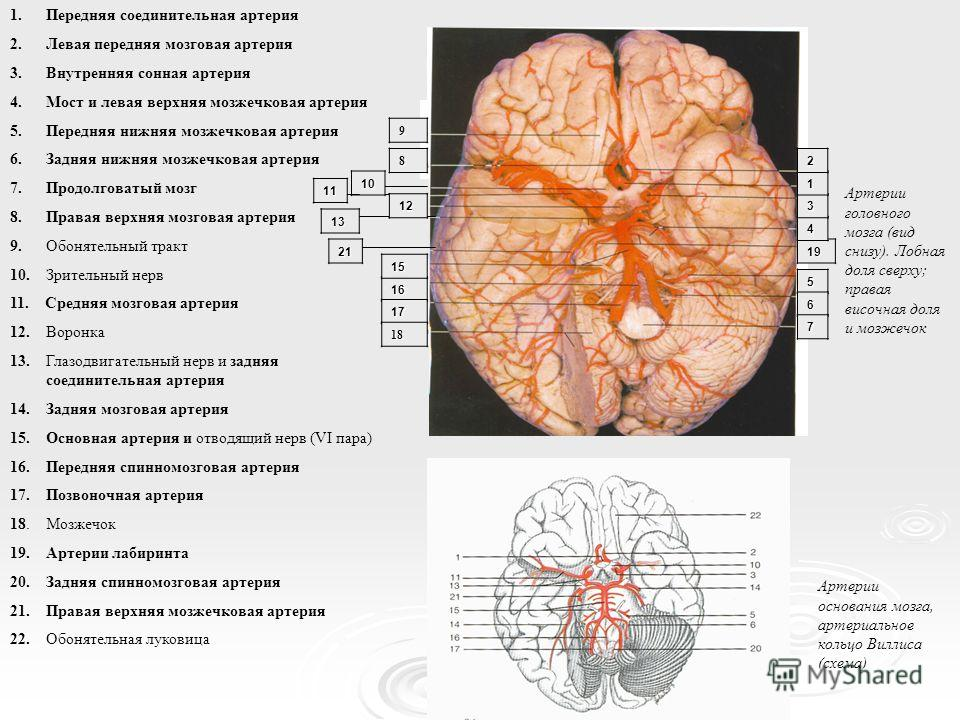 1.Передняя соединительная артерия 2.Левая передняя мозговая артерия 3.Внутренняя сонная артерия 4.Мост и левая верхняя мозжечковая артерия 5.Передняя нижняя мозжечковая артерия 6.Задняя нижняя мозжечковая артерия 7.Продолговатый мозг 8.Правая верхняя