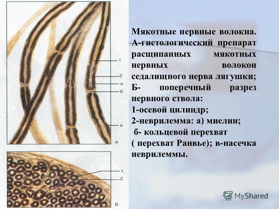Мякотные нервные волокна. А-гистологический препарат расщипанных мякотных нервных волокон седалищного нерва лягушки; Б- поперечный разрез нервного ствола: 1-осевой цилиндр; 2-неврилемма: а) миелин; б- кольцевой перехват ( перехват Ранвье); в-насечка