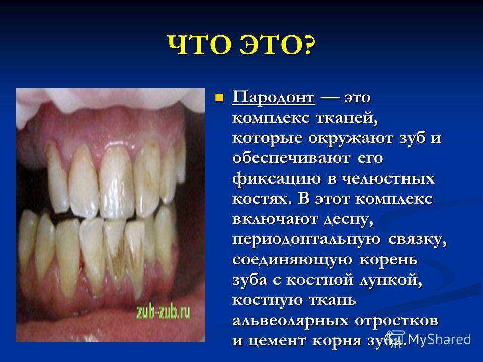 ЧТО ЭТО? Пародонт это комплекс тканей, которые окружают зуб и обеспечивают его фиксацию в челюстных костях. В этот комплекс включают десну, периодонтальную связку, соединяющую корень зуба с костной лункой, костную ткань альвеолярных отростков и цемен