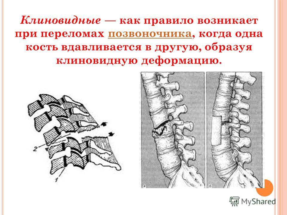 Клиновидные как правило возникает при переломах позвоночника, когда одна кость вдавливается в другую, образуя клиновидную деформацию.позвоночника