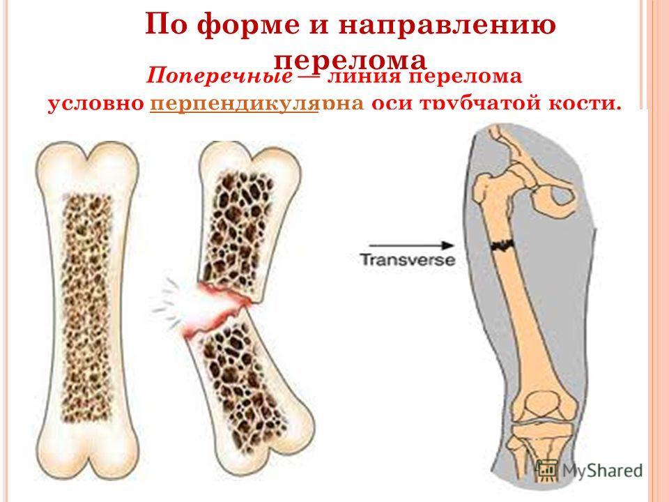 По форме и направлению перелома Поперечные линия перелома условно перпендикулярна оси трубчатой кости.перпендикулярна