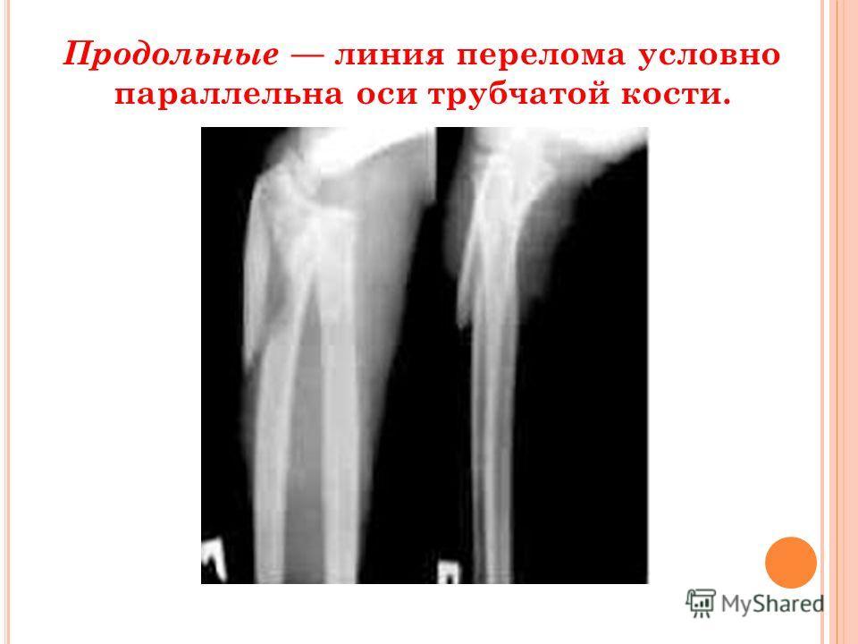 Продольные линия перелома условно параллельна оси трубчатой кости.