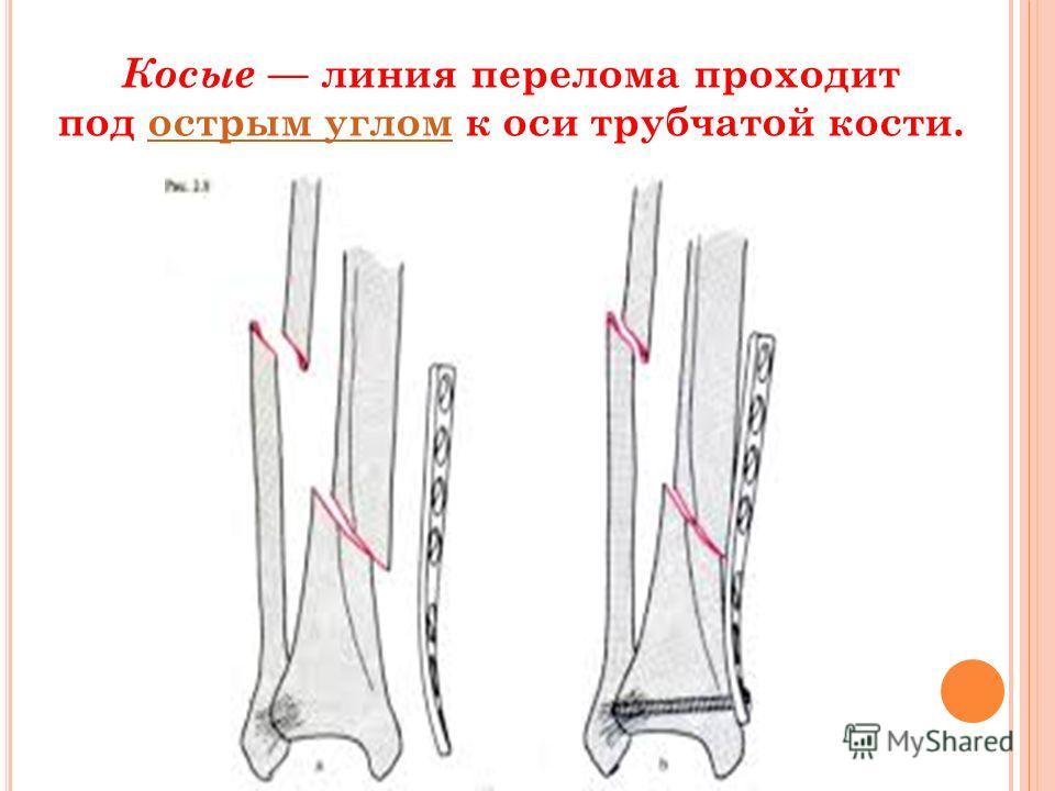 Косые линия перелома проходит под острым углом к оси трубчатой кости.острым углом