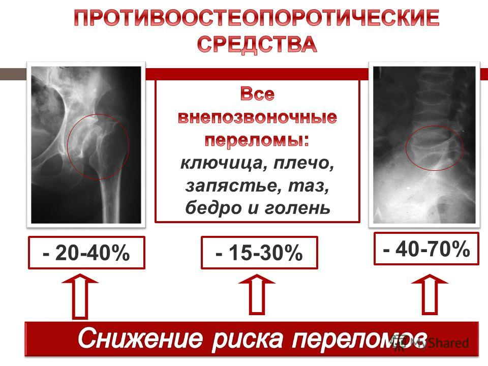 - 20-40% - 40-70% - 15-30%