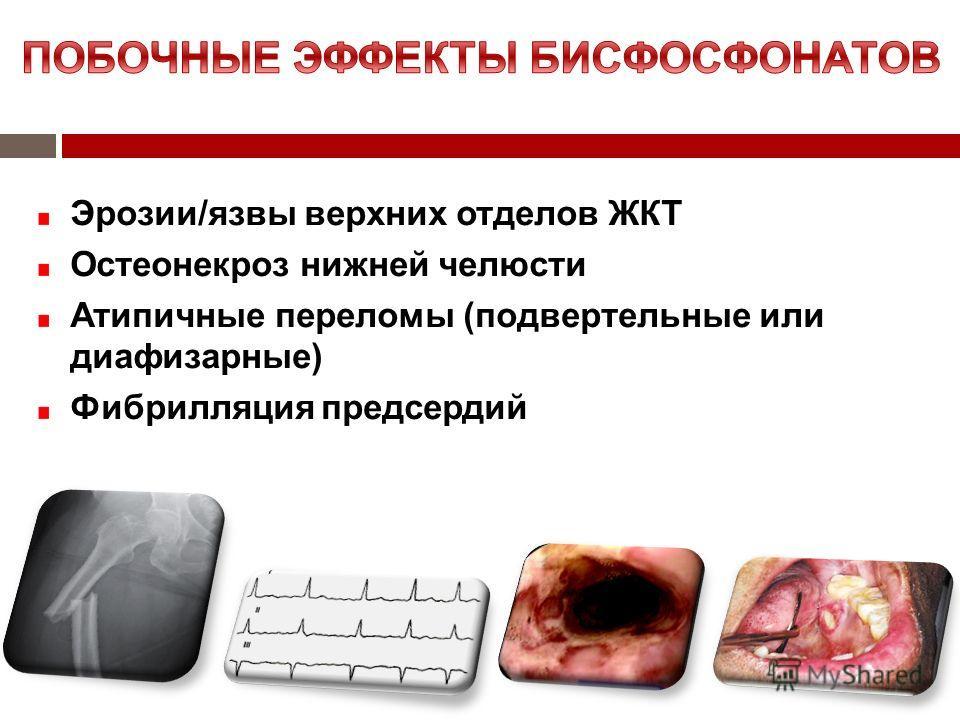 Эрозии/язвы верхних отделов ЖКТ Остеонекроз нижней челюсти Атипичные переломы (подвертельные или диафизарные) Фибрилляция предсердий