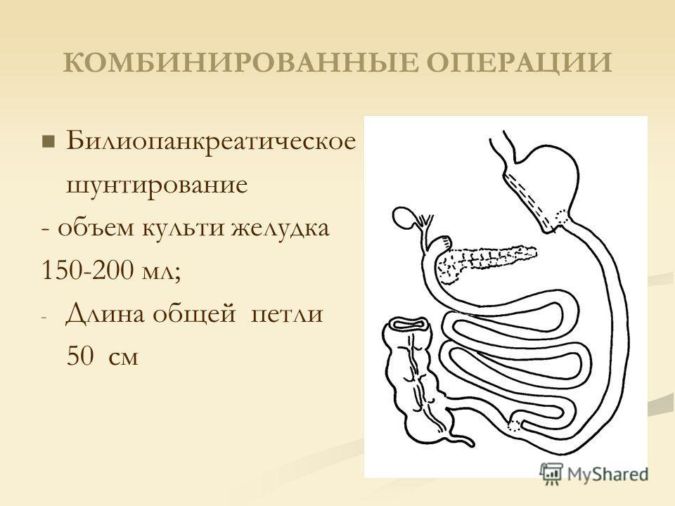 КОМБИНИРОВАННЫЕ ОПЕРАЦИИ Билиопанкреатическое шунтирование - объем культи желудка 150-200 мл; - - Длина общей петли 50 см