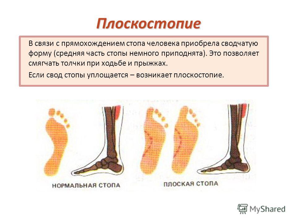 Плоскостопие В связи с прямохождением стопа человека приобрела сводчатую форму (средняя часть стопы немного приподнята). Это позволяет смягчать толчки при ходьбе и прыжках. Если свод стопы уплощается – возникает плоскостопие.