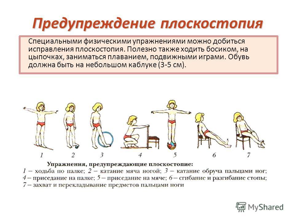 Предупреждение плоскостопия Специальными физическими упражнениями можно добиться исправления плоскостопия. Полезно также ходить босиком, на цыпочках, заниматься плаванием, подвижными играми. Обувь должна быть на небольшом каблуке (3-5 см).