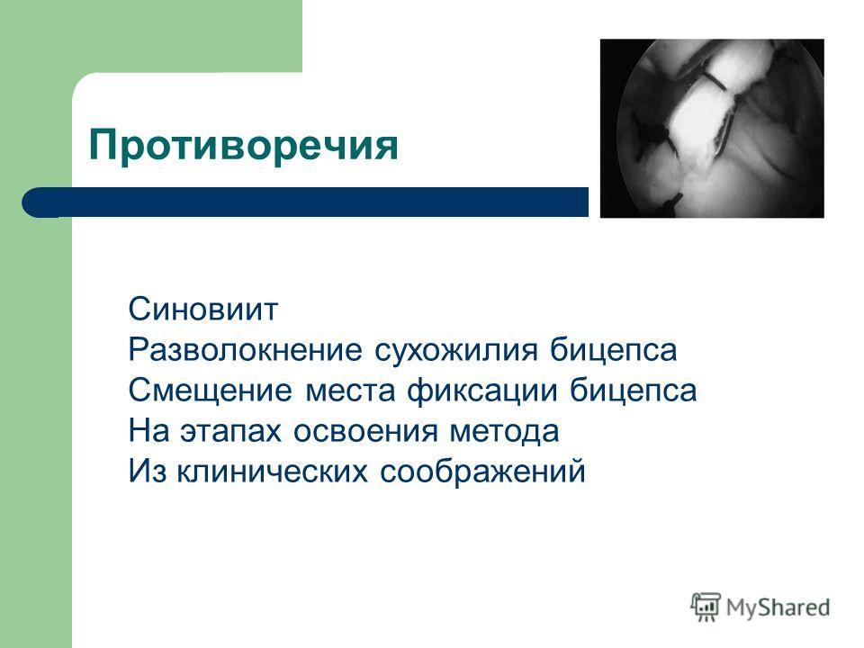 Противоречия Синовиит Разволокнение сухожилия бицепса Смещение места фиксации бицепса На этапах освоения метода Из клинических соображений