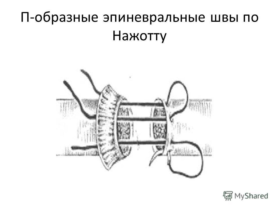 П-образные эпиневральные швы по Нажотту