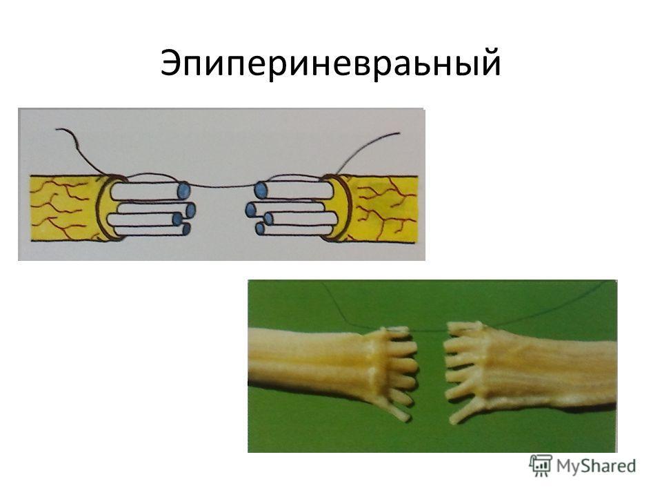 Эпипериневраьный