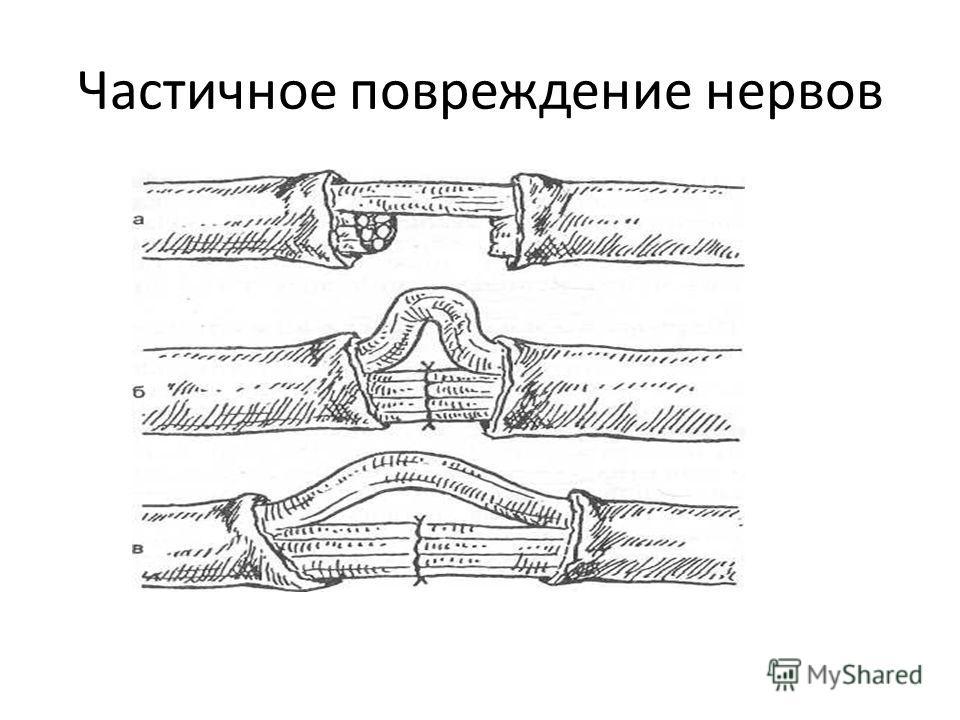 Частичное повреждение нервов
