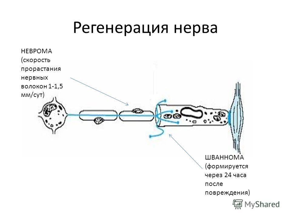 Регенерация нерва НЕВРОМА (скорость прорастания нервных волокон 1-1,5 мм/сут) ШВАННОМА (формируется через 24 часа после повреждения)
