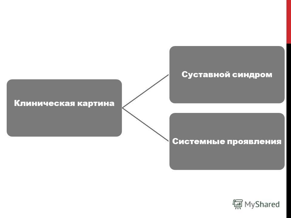 Клиническая картина Суставной синдромСистемные проявления
