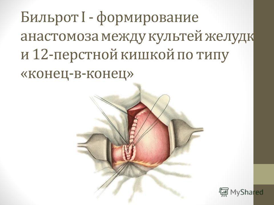 Бильрот I - формирование анастомоза между культей желудка и 12-перстной кишкой по типу «конец-в-конец»